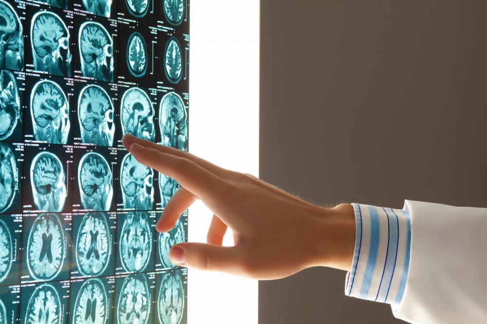 traumatic brain injury lawyers